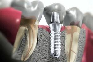 implantologia 01