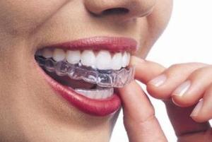 ortodonzia01